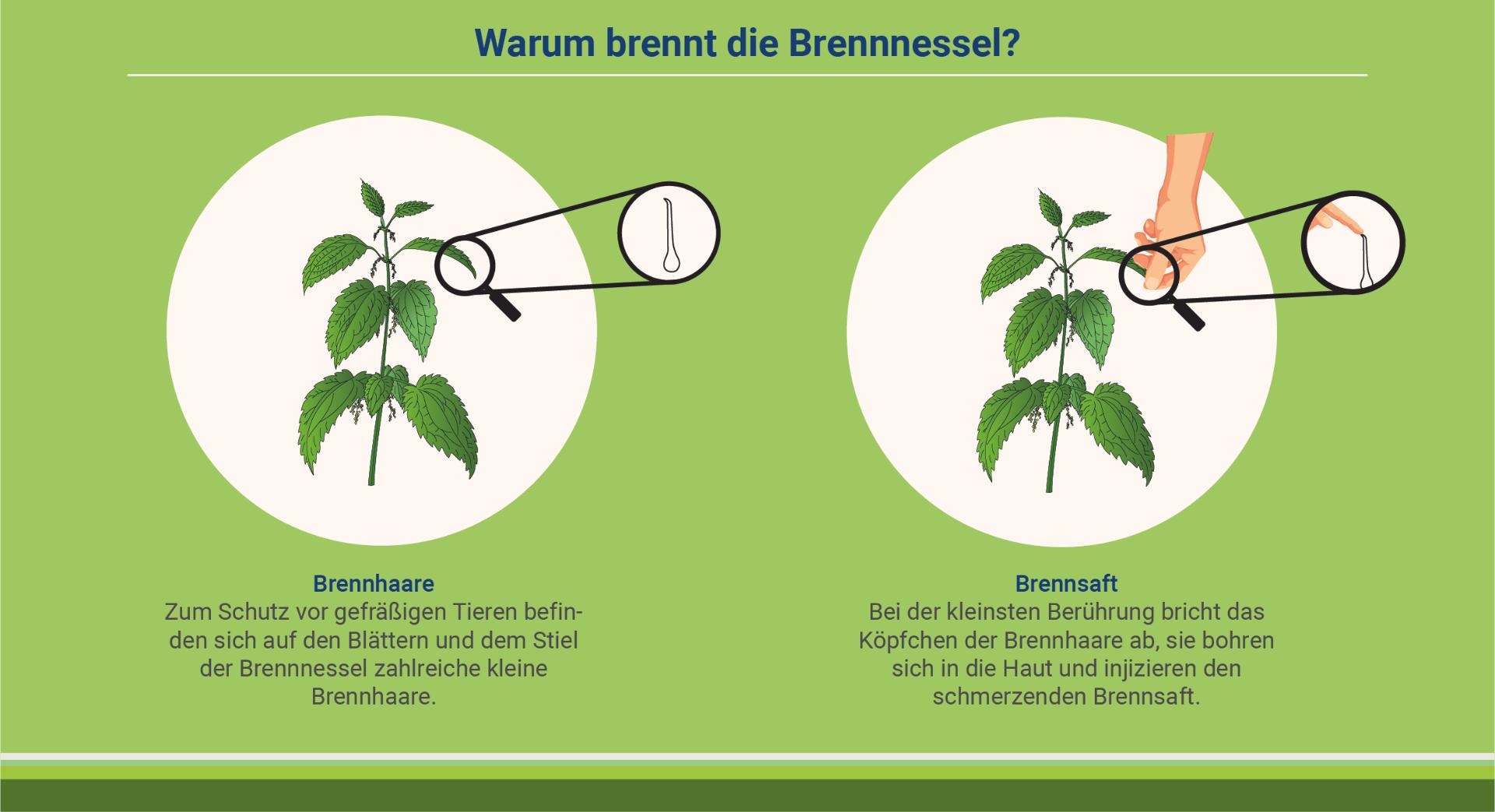 infografik-warum-brennt-die-brennnessel